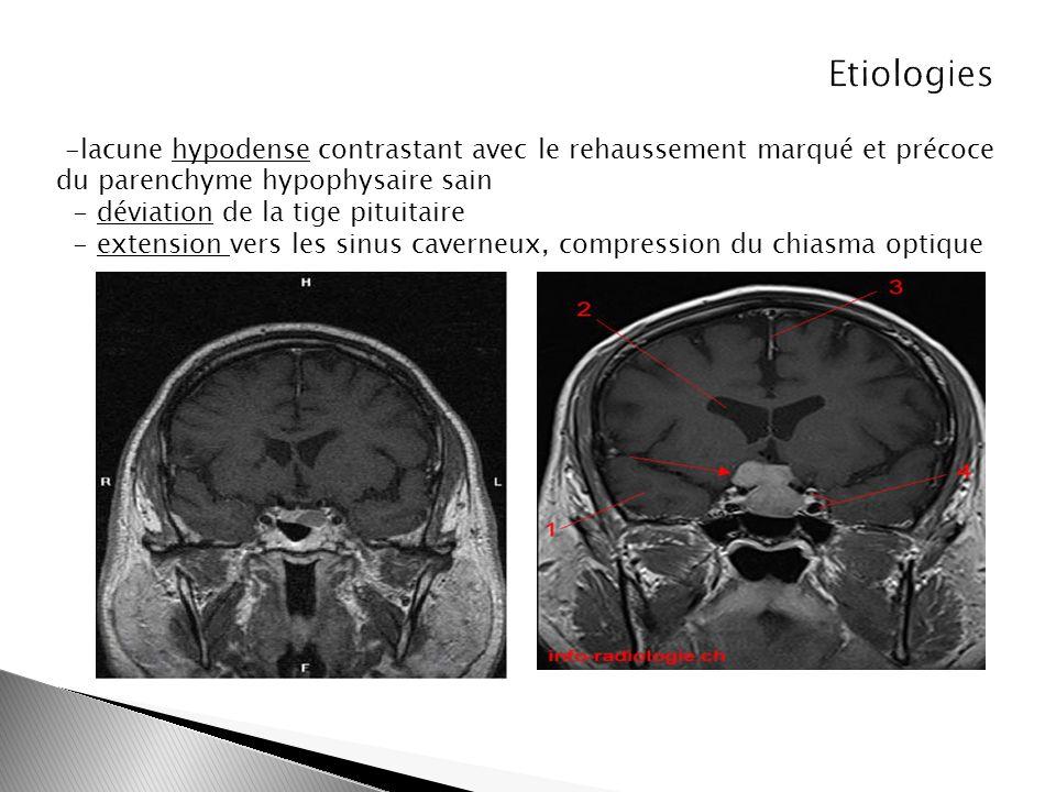 Etiologies -lacune hypodense contrastant avec le rehaussement marqué et précoce du parenchyme hypophysaire sain.