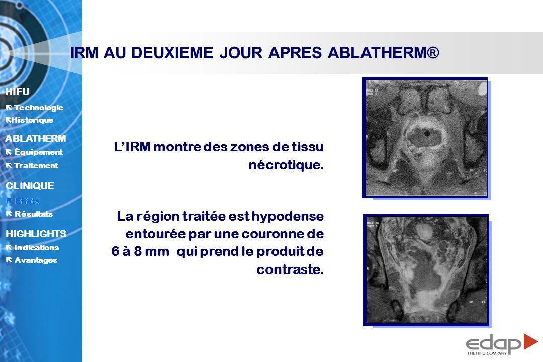 IRM AU DEUXIEME JOUR APRES ABLATHERM®