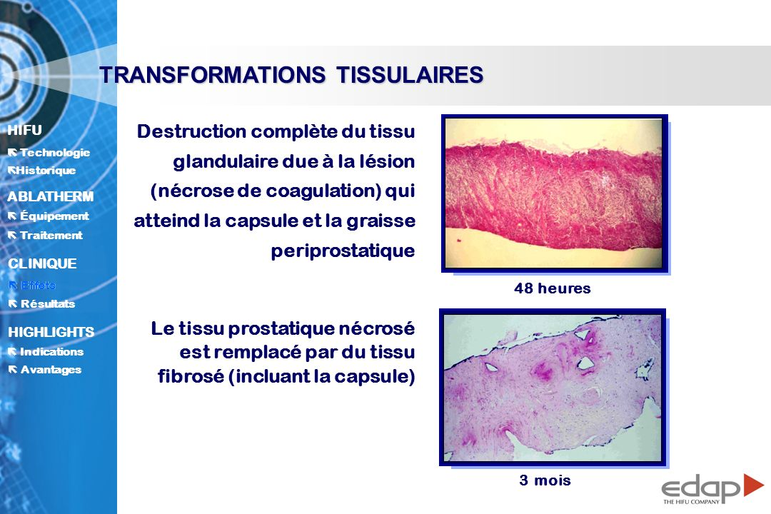 TRANSFORMATIONS TISSULAIRES