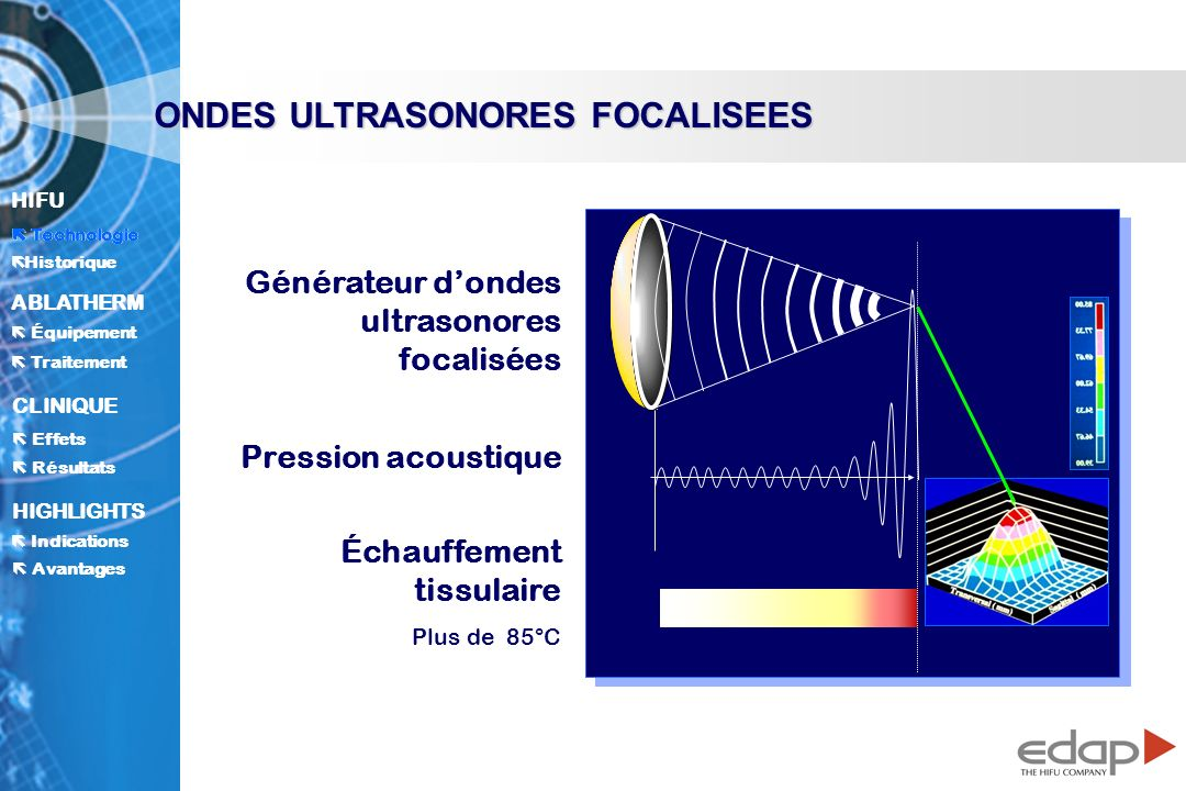 ONDES ULTRASONORES FOCALISEES