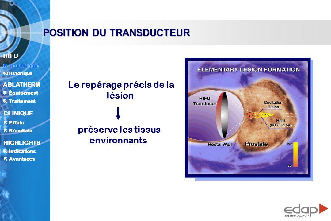 Le repérage précis de la lésion préserve les tissus environnants