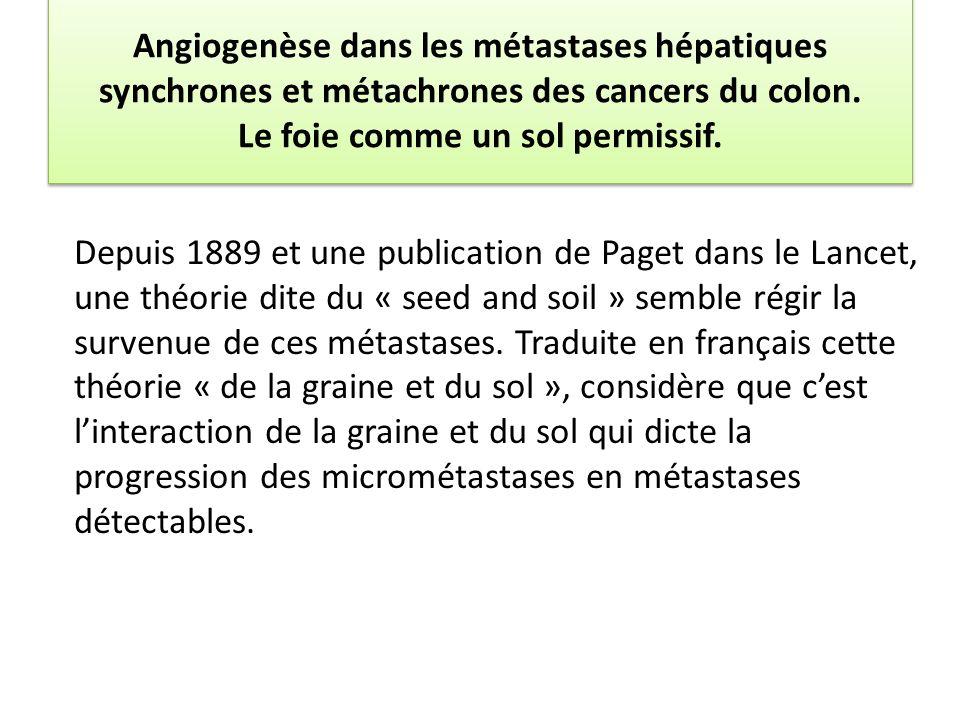 Angiogenèse dans les métastases hépatiques synchrones et métachrones des cancers du colon. Le foie comme un sol permissif.