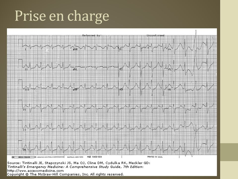 Prise en charge Tachy sinusale PR prolongé QRS prolongé
