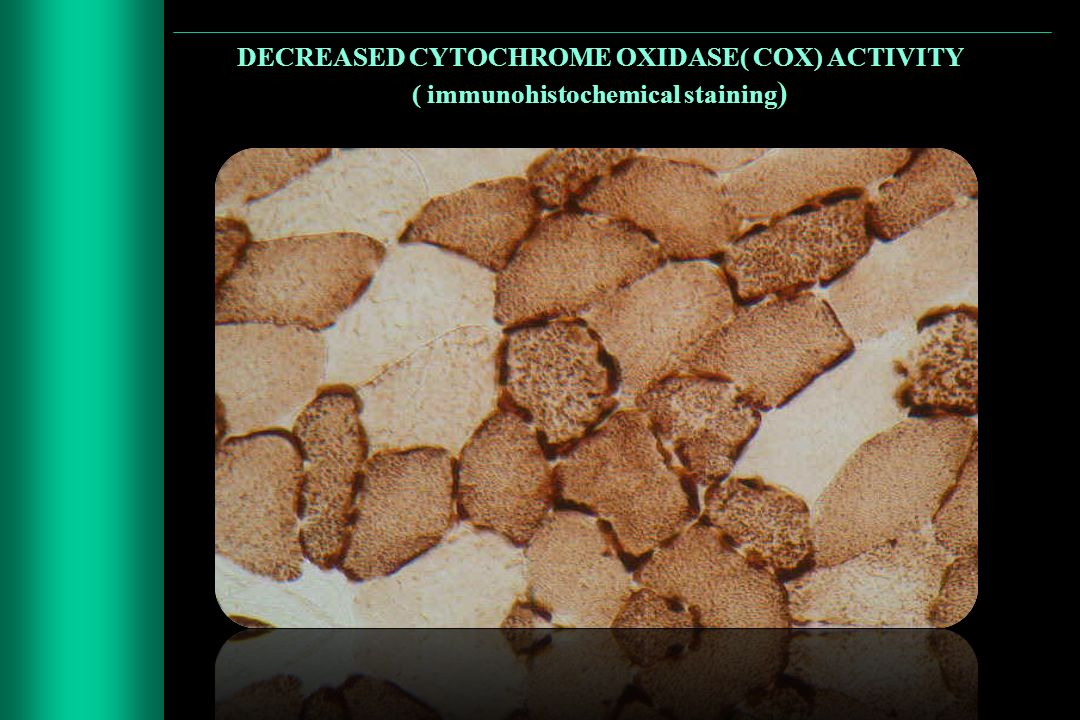 DECREASED CYTOCHROME OXIDASE( COX) ACTIVITY ( immunohistochemical staining)