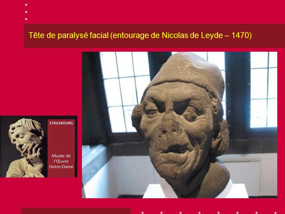 Tête de paralysé facial (entourage de Nicolas de Leyde – 1470)