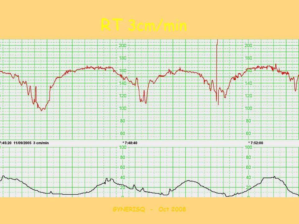 RT 3cm/min GYNERISQ - Oct 2008