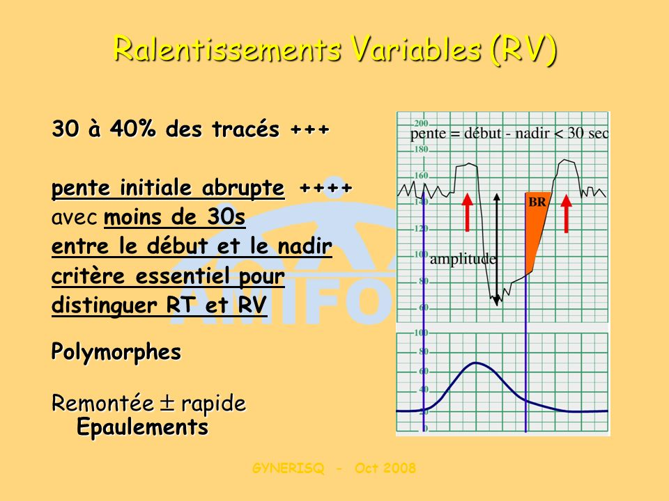 Ralentissements Variables (RV)