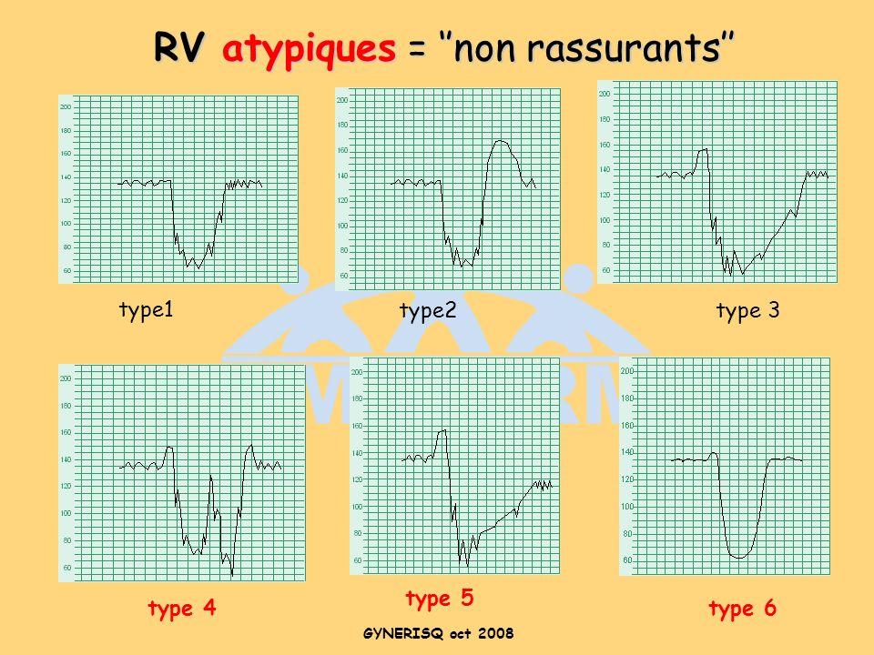 RV atypiques = ''non rassurants''