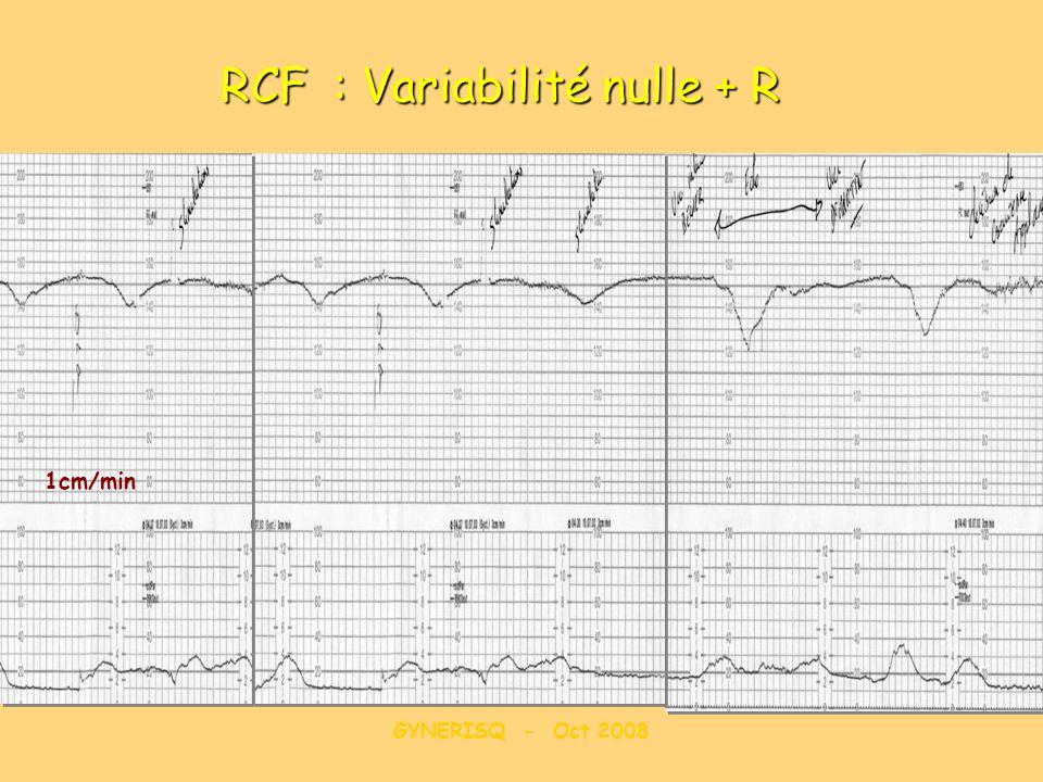 RCF : Variabilité nulle + R