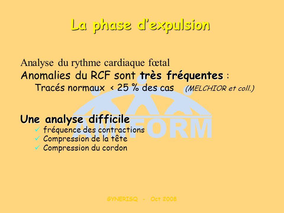 La phase d'expulsion Anomalies du RCF sont très fréquentes :
