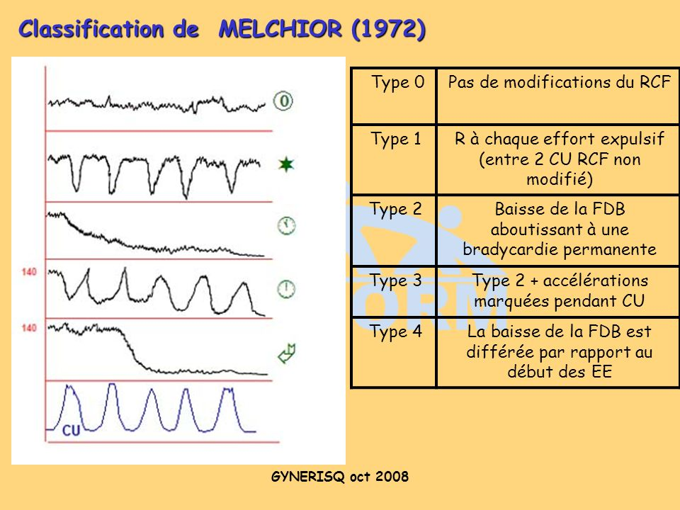 Classification de MELCHIOR (1972)