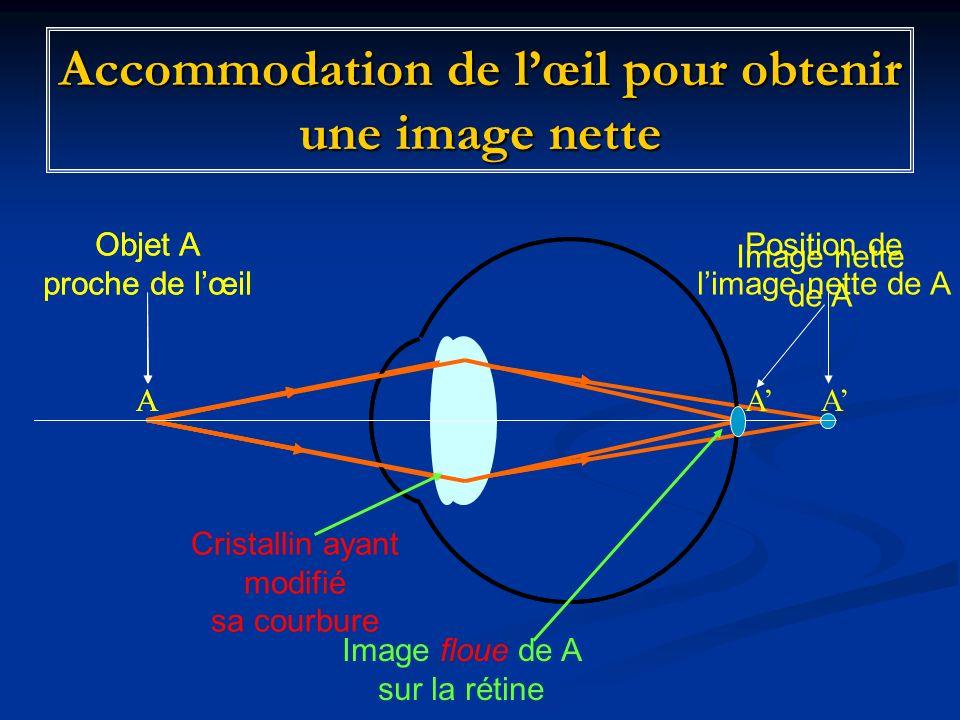 Accommodation de l'œil pour obtenir une image nette