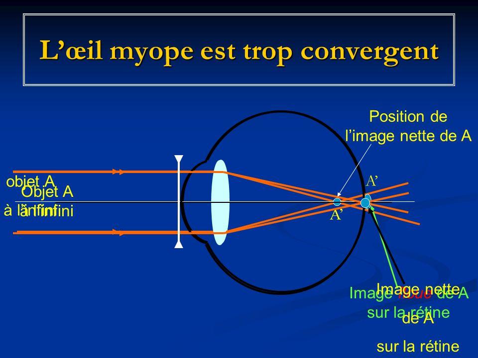 L'œil myope est trop convergent