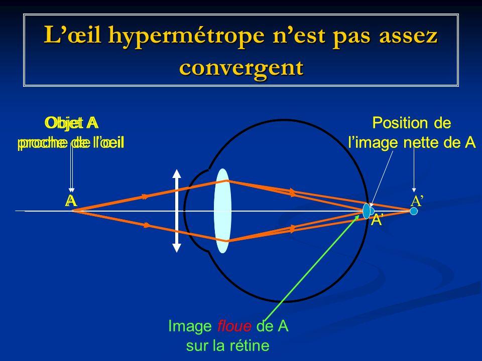 L'œil hypermétrope n'est pas assez convergent