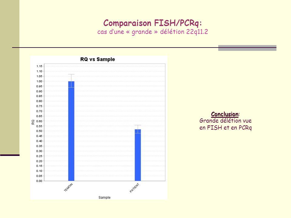 Comparaison FISH/PCRq: cas d'une « grande » délétion 22q11.2