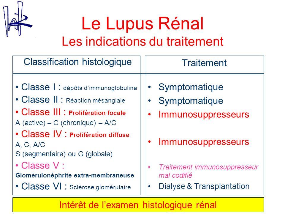 Le Lupus Rénal Les indications du traitement