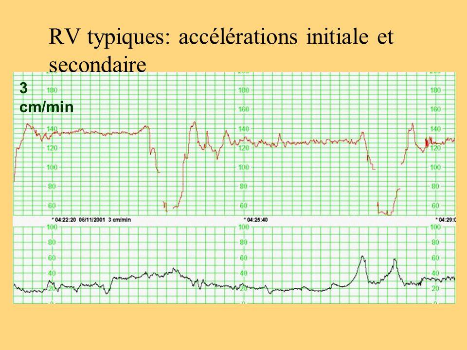 RV typiques: accélérations initiale et secondaire