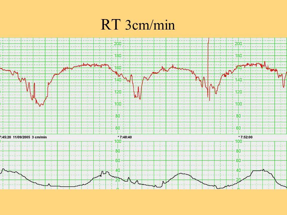 RT 3cm/min