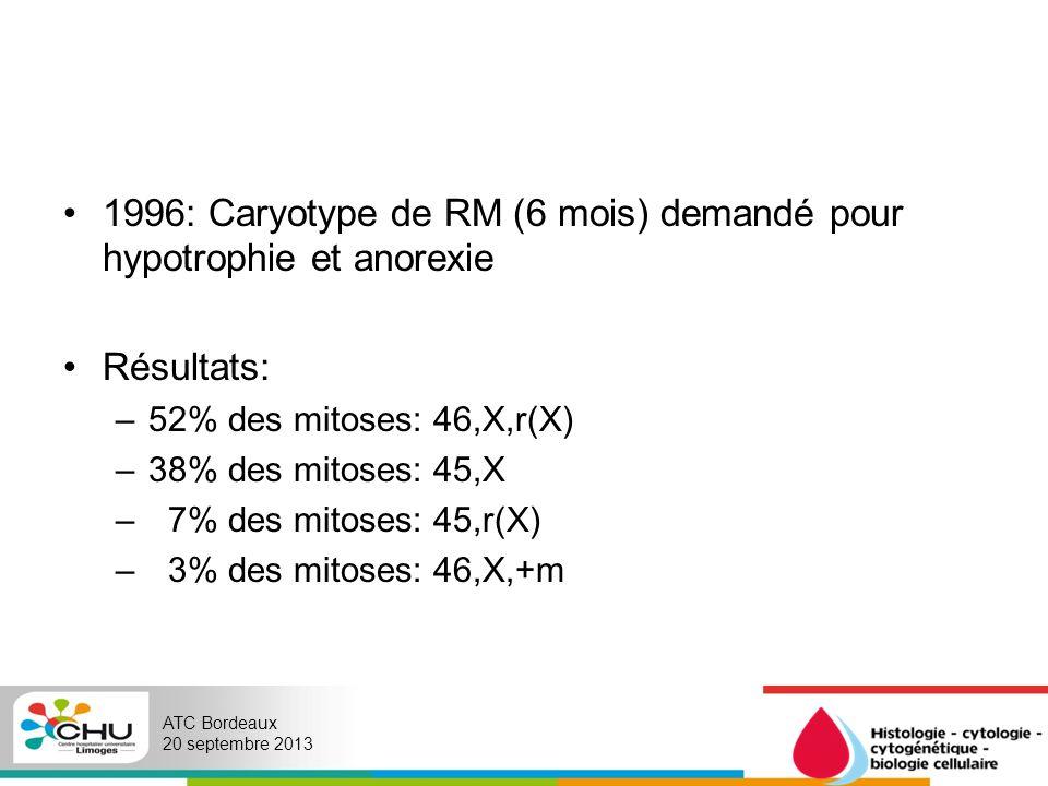 1996: Caryotype de RM (6 mois) demandé pour hypotrophie et anorexie
