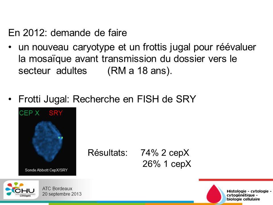 Frotti Jugal: Recherche en FISH de SRY