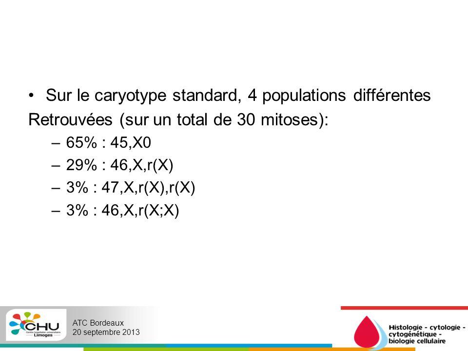 Sur le caryotype standard, 4 populations différentes