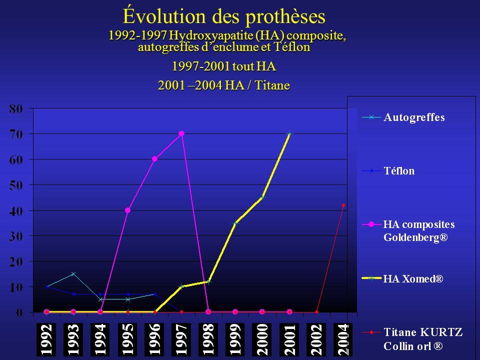 Évolution des prothèses 1992-1997 Hydroxyapatite (HA) composite, autogreffes d'enclume et Téflon 1997-2001 tout HA 2001 –2004 HA / Titane