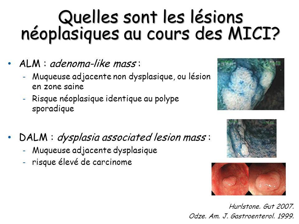Quelles sont les lésions néoplasiques au cours des MICI