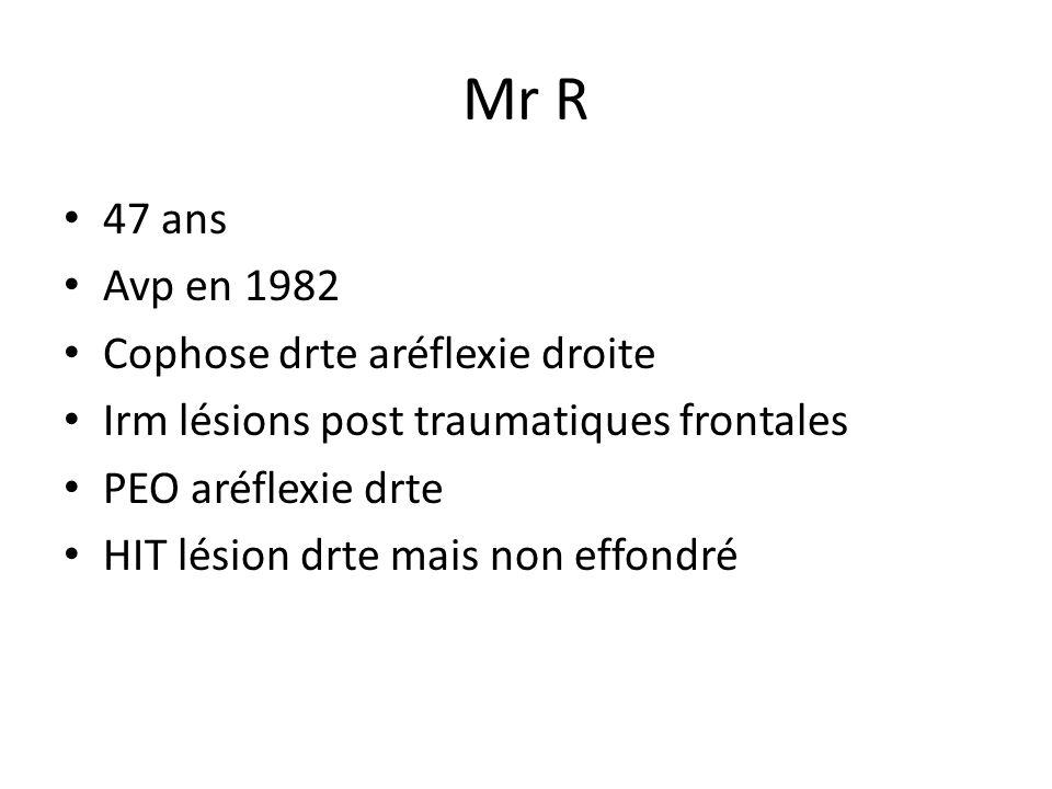 Mr R 47 ans Avp en 1982 Cophose drte aréflexie droite
