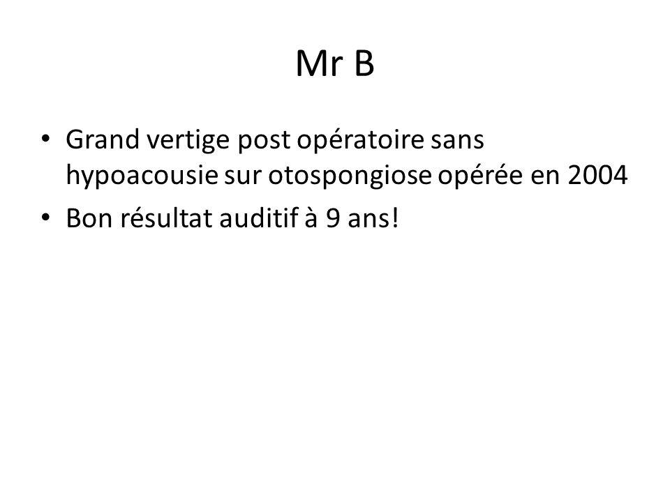 Mr B Grand vertige post opératoire sans hypoacousie sur otospongiose opérée en 2004.