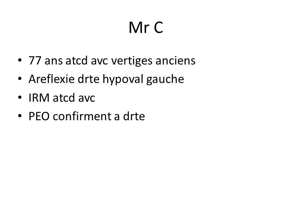 Mr C 77 ans atcd avc vertiges anciens Areflexie drte hypoval gauche