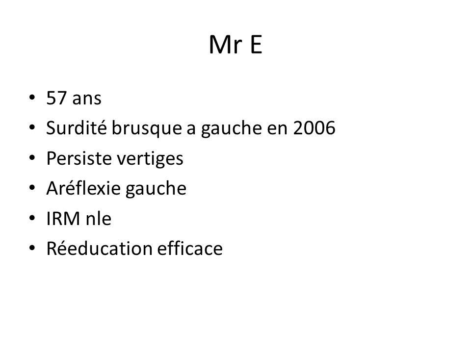 Mr E 57 ans Surdité brusque a gauche en 2006 Persiste vertiges