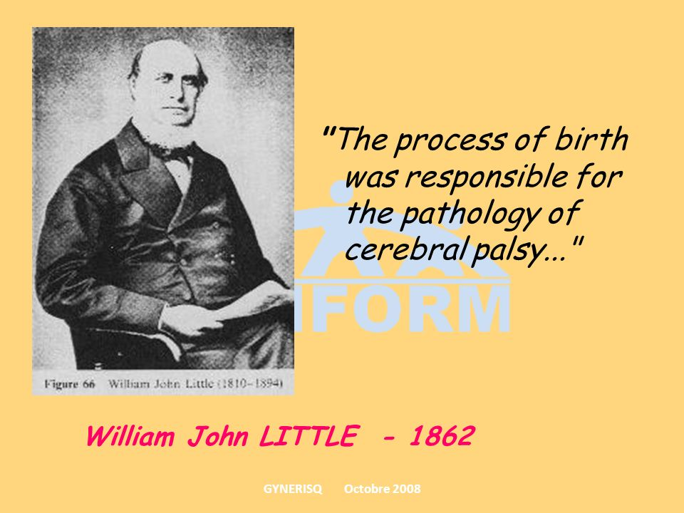The process of birth was responsible for the pathology of cerebral palsy...