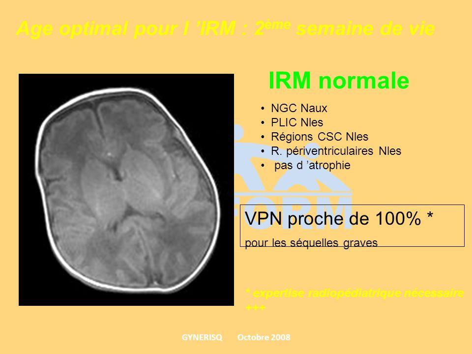 Age optimal pour l 'IRM : 2ème semaine de vie