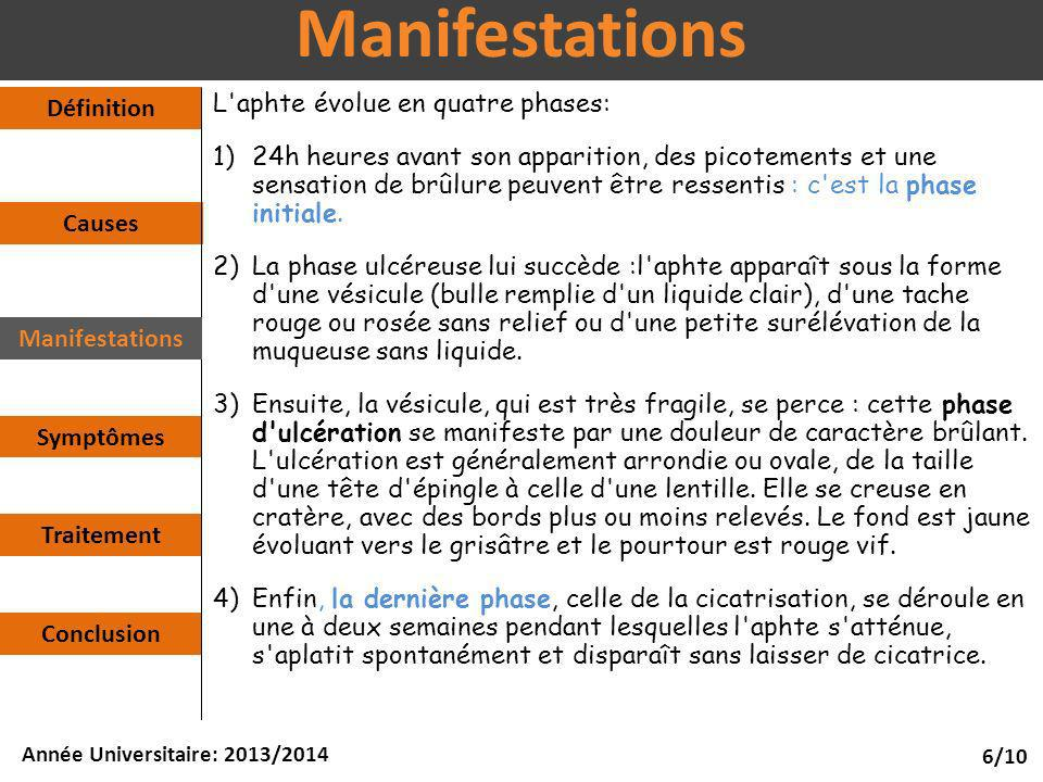 Manifestations Définition L aphte évolue en quatre phases: