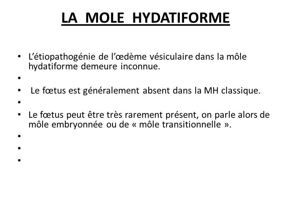 LA MOLE HYDATIFORME L'étiopathogénie de l'œdème vésiculaire dans la môle hydatiforme demeure inconnue.