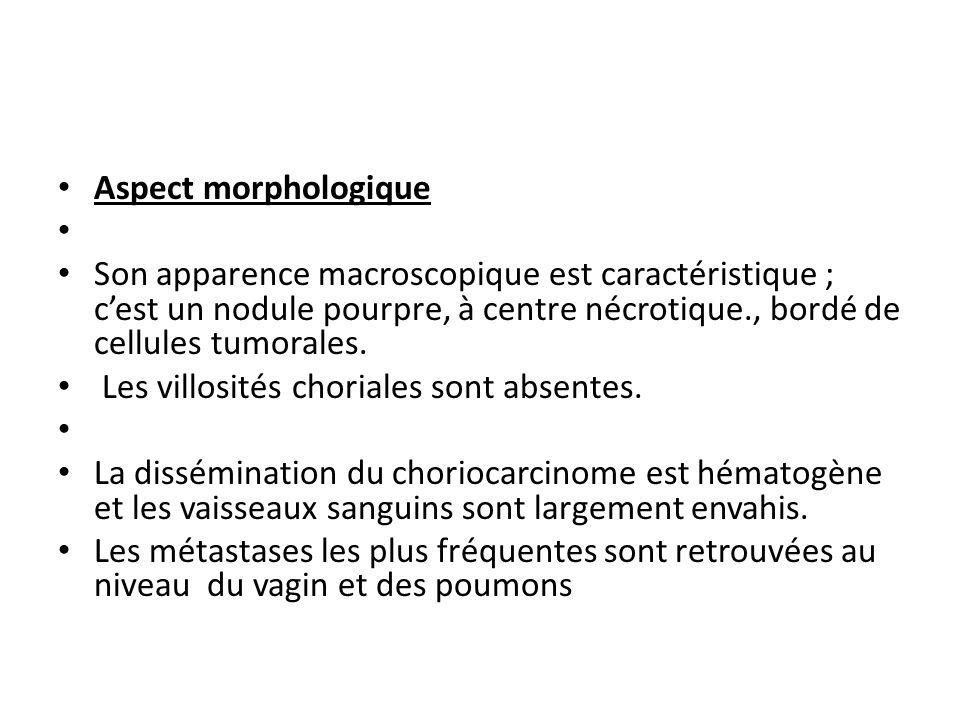 Aspect morphologique Son apparence macroscopique est caractéristique ; c'est un nodule pourpre, à centre nécrotique., bordé de cellules tumorales.