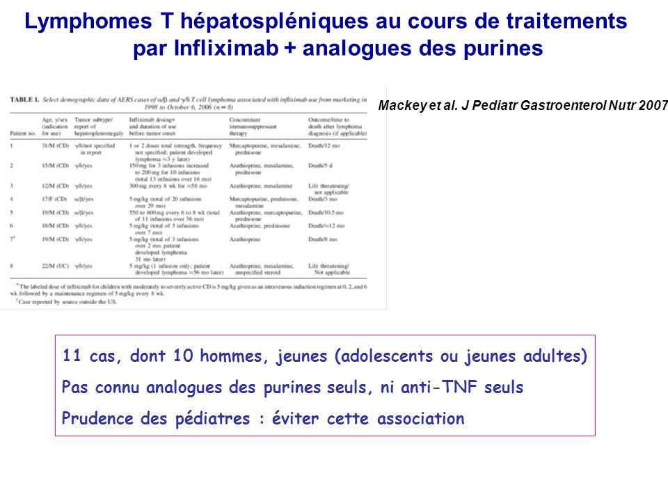 Lymphomes T hépatospléniques au cours de traitements par Infliximab + analogues des purines