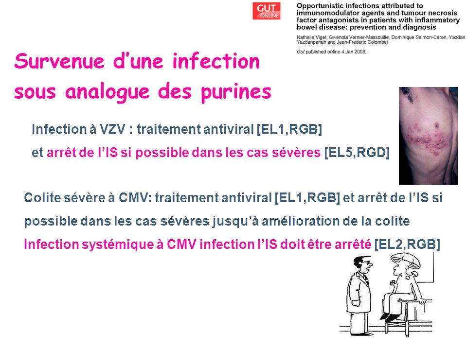 Survenue d'une infection sous analogue des purines