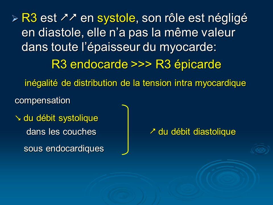 R3 endocarde >>> R3 épicarde