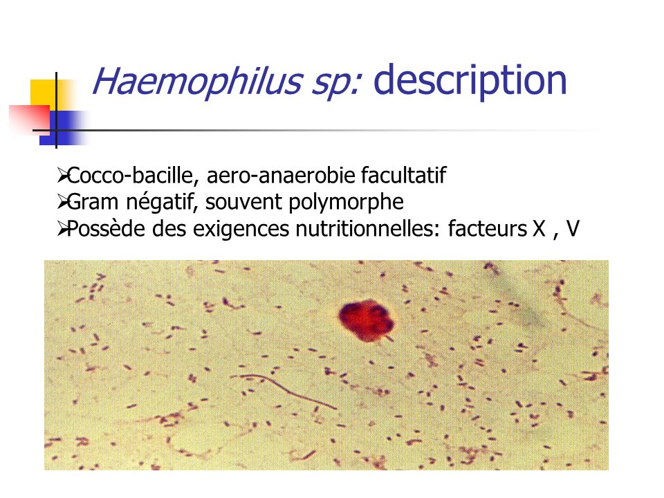 Haemophilus sp: description