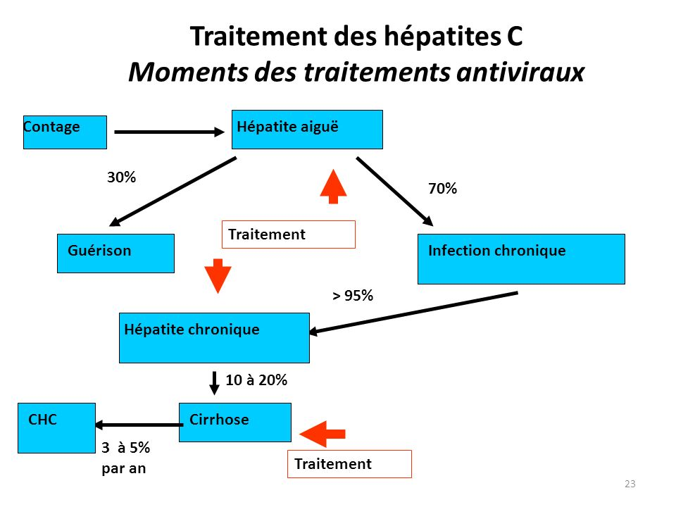 Traitement des hépatites C Moments des traitements antiviraux