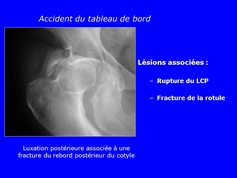 Accident du tableau de bord