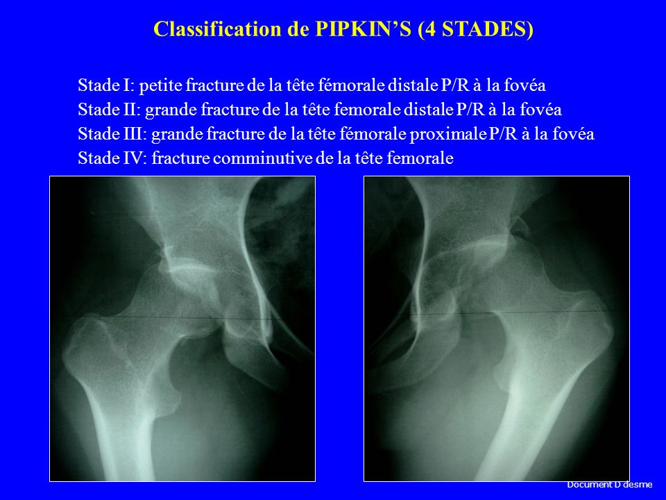 Classification de PIPKIN'S (4 STADES)