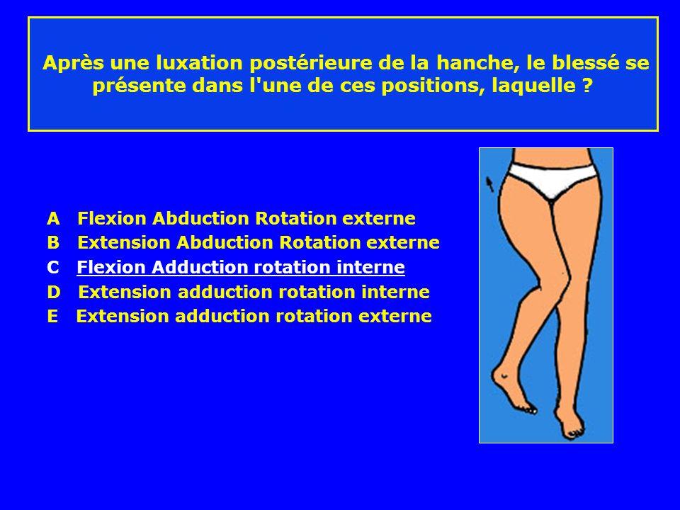 Après une luxation postérieure de la hanche, le blessé se présente dans l une de ces positions, laquelle