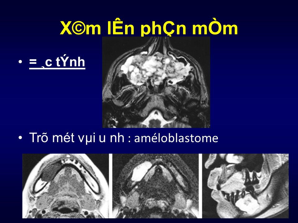 X©m lÊn phÇn mÒm = ¸c tÝnh Trõ mét vµi u nh : améloblastome