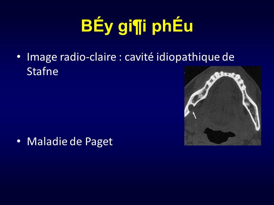 BÉy gi¶i phÉu Image radio-claire : cavité idiopathique de Stafne