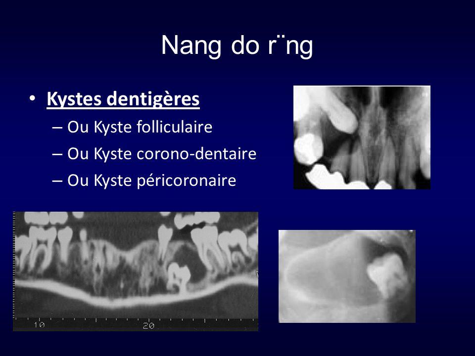 Nang do r¨ng Kystes dentigères Ou Kyste folliculaire