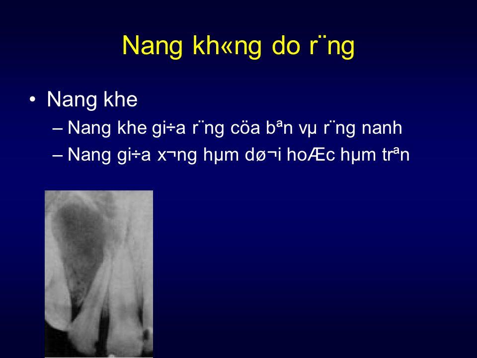 Nang kh«ng do r¨ng Nang khe Nang khe gi÷a r¨ng cöa bªn vµ r¨ng nanh