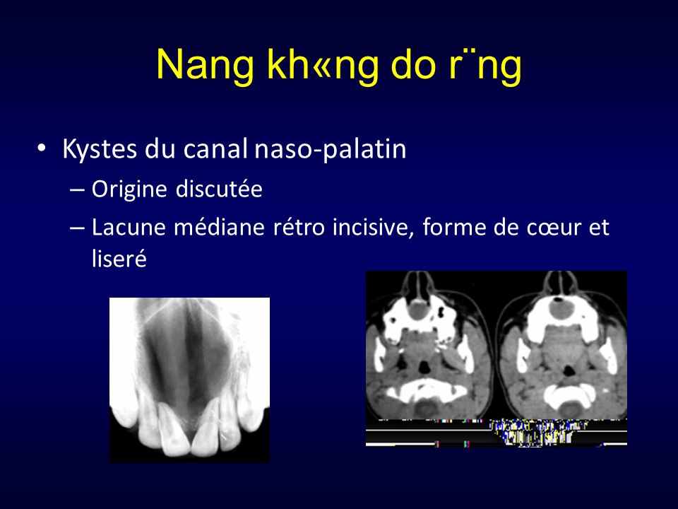 Nang kh«ng do r¨ng Kystes du canal naso-palatin Origine discutée