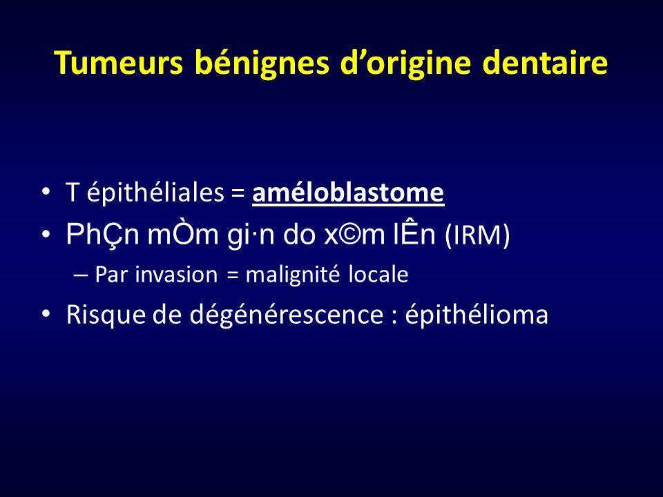 Tumeurs bénignes d'origine dentaire